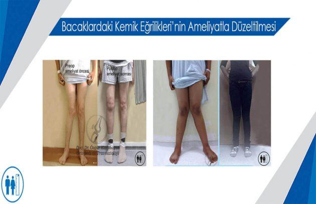 Bacaklardaki Kemik Eğrilikleri Boy Ameliyatı