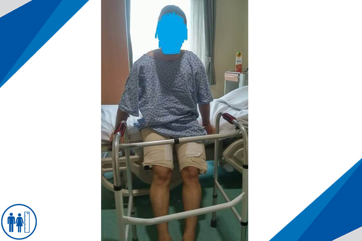 Boy Uzatma Ameliyatı Olanlar Holyfix Yöntemi